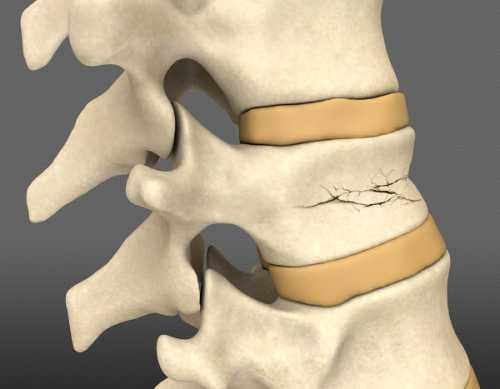 Компрессионный перелом позвоночника поясничного, грудного, шейного отдела
