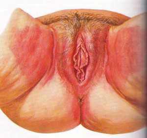 Они сопровождаются неприятным запахом, зудом и появлением покраснений вульвы и промежности