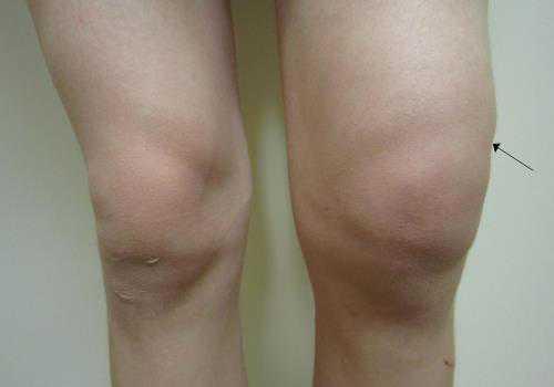 Воспаление коленного сустава у человека