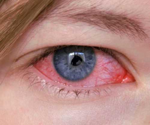 Воспаление роговицы: симптомы, причины, это