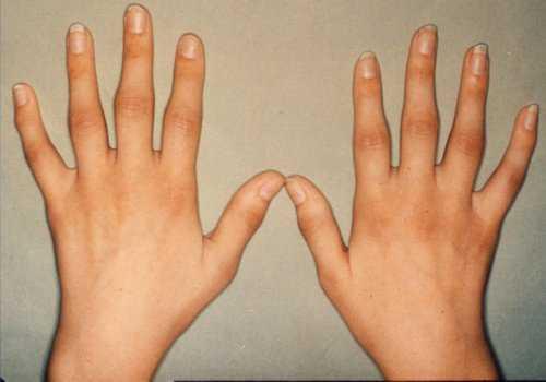 Отекают руки кисти, пальцы