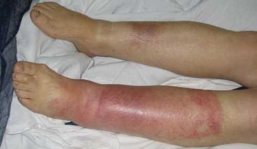 Воспаление голени: симптомы, причины, это